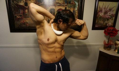 Jon après son opération pour enlever l'excès de peau.