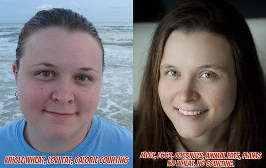 Comment Amanda a perdu 35 kilos et guéri son diabète avec ...